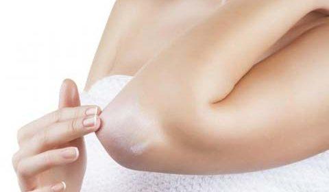 Hipersensibilidad dérmica – Dermatitis